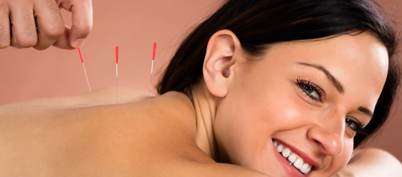 A Guide to Acupuncture